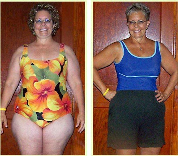 лишний вес до и после фото