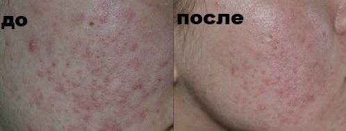 кожа лица до и после химического пилинга