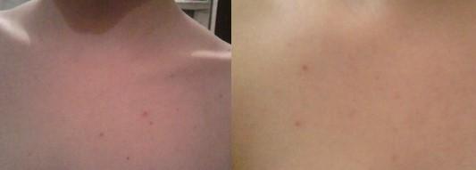 кожа до и после применения глины