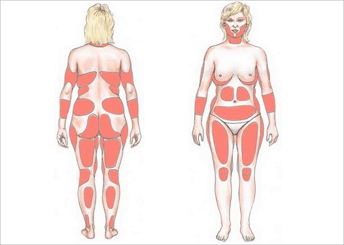 распределение жира на теле женщины