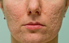 рубцы на коже лица