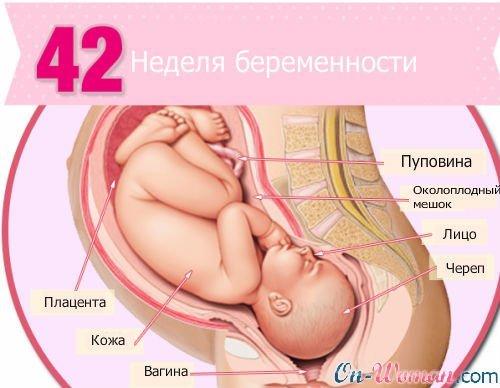 42 неделя беременоости что делать