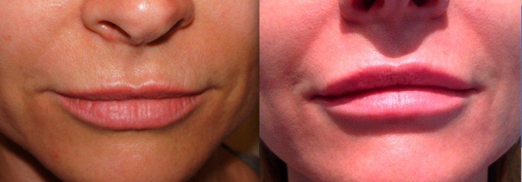 Как правильно помпой накачать половые губы