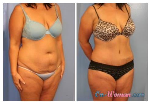 фото до и после