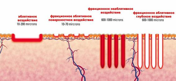 Абляционный и неабляционный фототермолиз