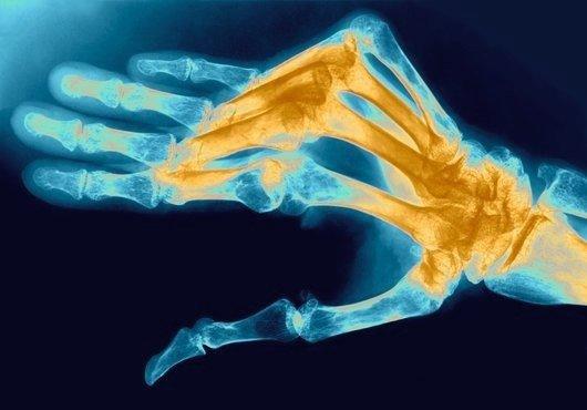 ревматоидном артрите