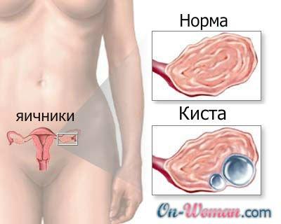 болит яичник при беременности