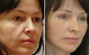 Фото девушки до использования испанского массажа и после десятидневного курса