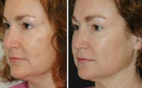 Фото женщины до прохождения курса процедур испанского массажа лица и после