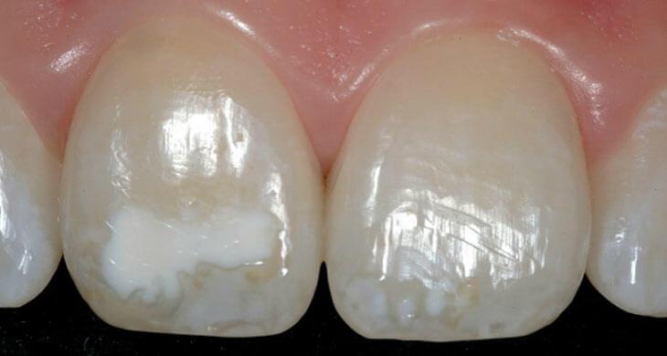 Гипоплазия эмали на передних зубах