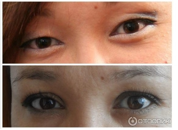 Хирургическое избавление от мешков под глазами