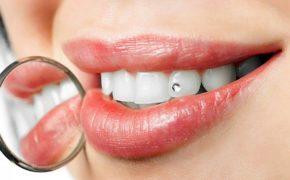 Инкрустация зубов