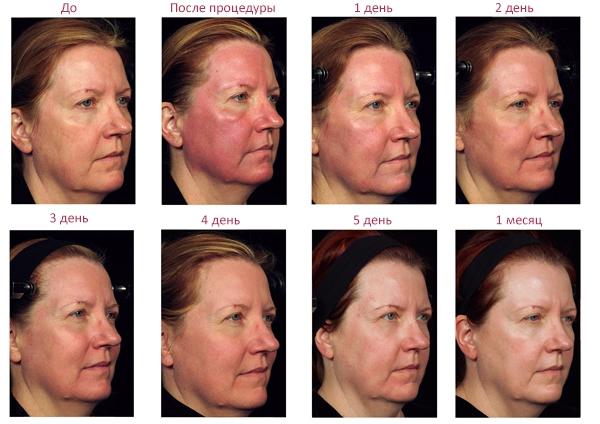 Изменение состояния кожи