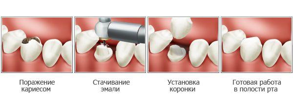 Схема установки коронки