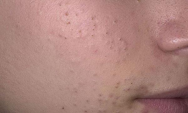 камедоны (чёрные точки) на лице