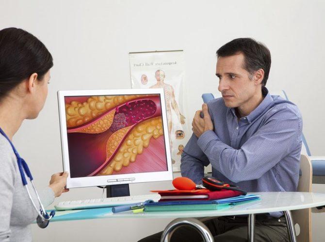 болезни сердца диагностика