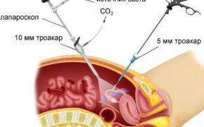 Лапароскопическая операция (схема)