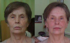 Лицо женщины до и после нескольких процедур испанского массажа