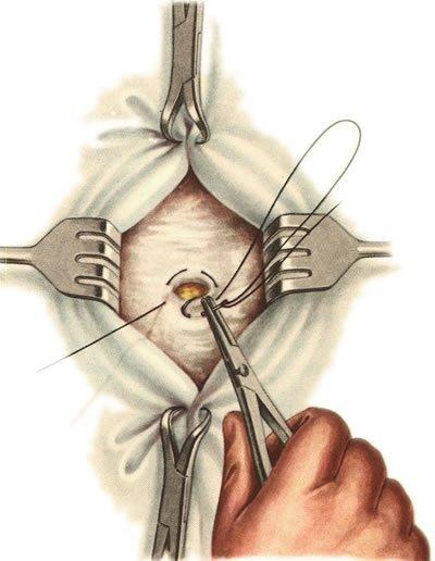 лечение липомы