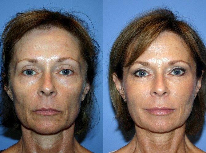 плазмолифтинг лица фото до и после отзывы