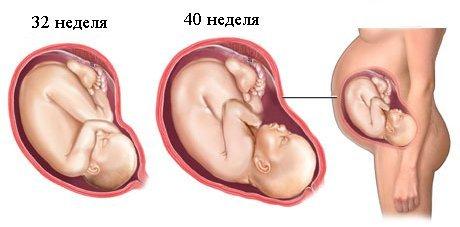 lozhnye-sxvatki (1)