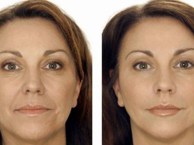 Фото до и после миостимуляции