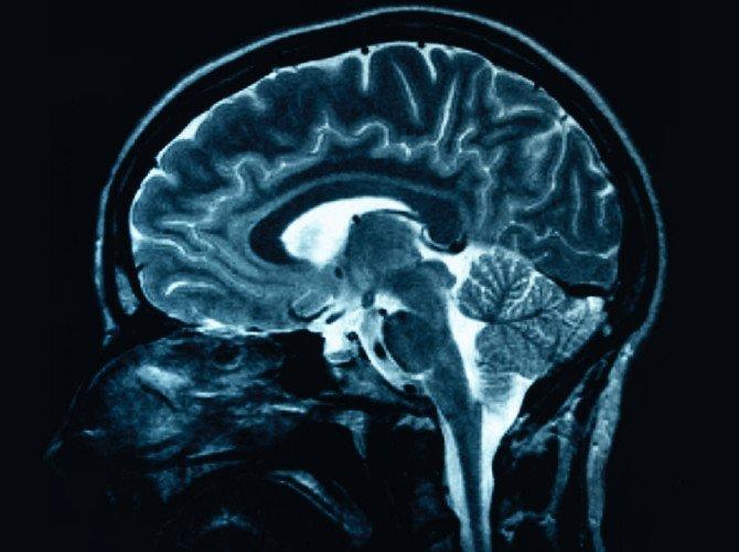 неврологическиезаболевания