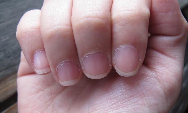 Ногти с неаккуратной кутикулой