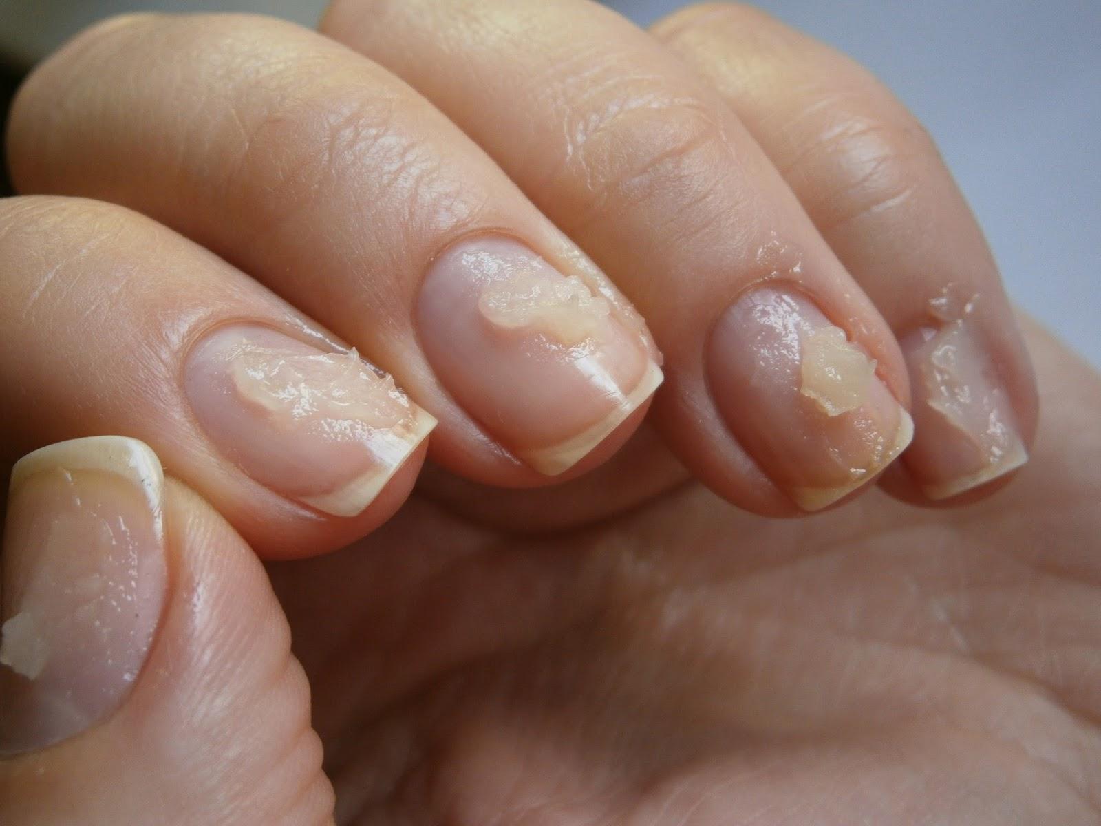 Фото ногтя после снятия гель лака