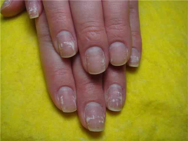 Ногти с содранным шеллаком