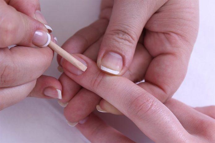 Отделение кутикулы от ногтевой пластины
