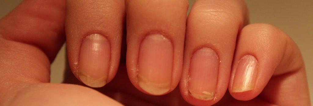 Пальцы со слоящимися ногтями