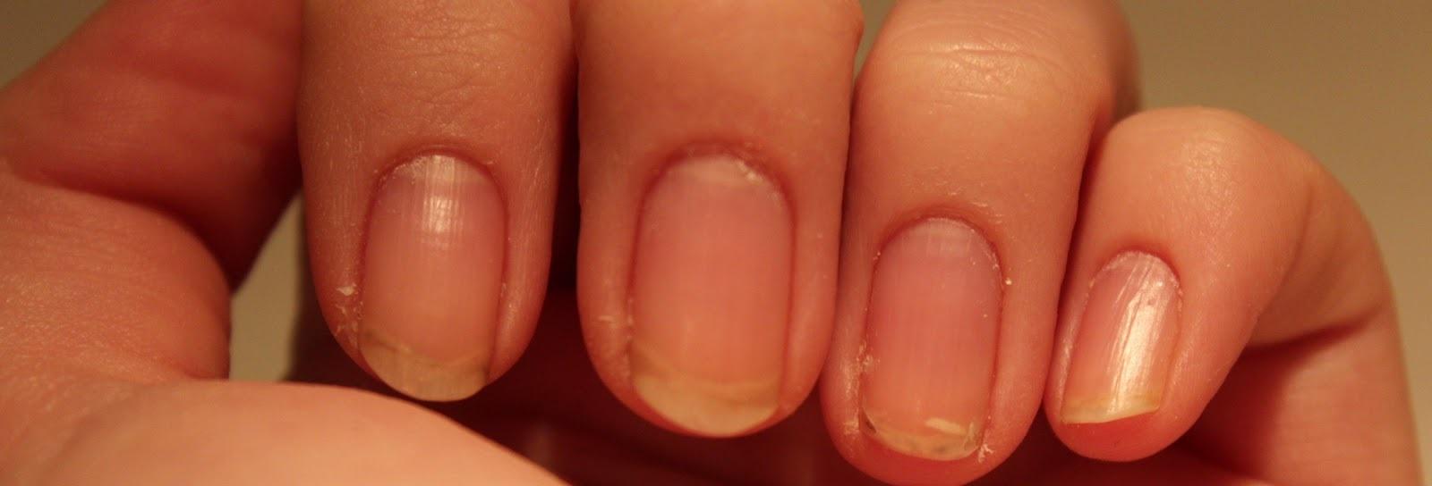 Грибок на ногтях на руках