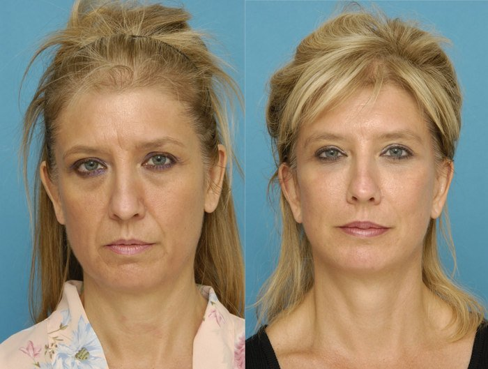 фотоомоложение лица отзывы фото до и после цена