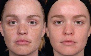 Разглаживание морщин, возобновление тонуса кожи, исчезновение пигментных пятен — вот далеко не полный список результатов фотоомоложения.
