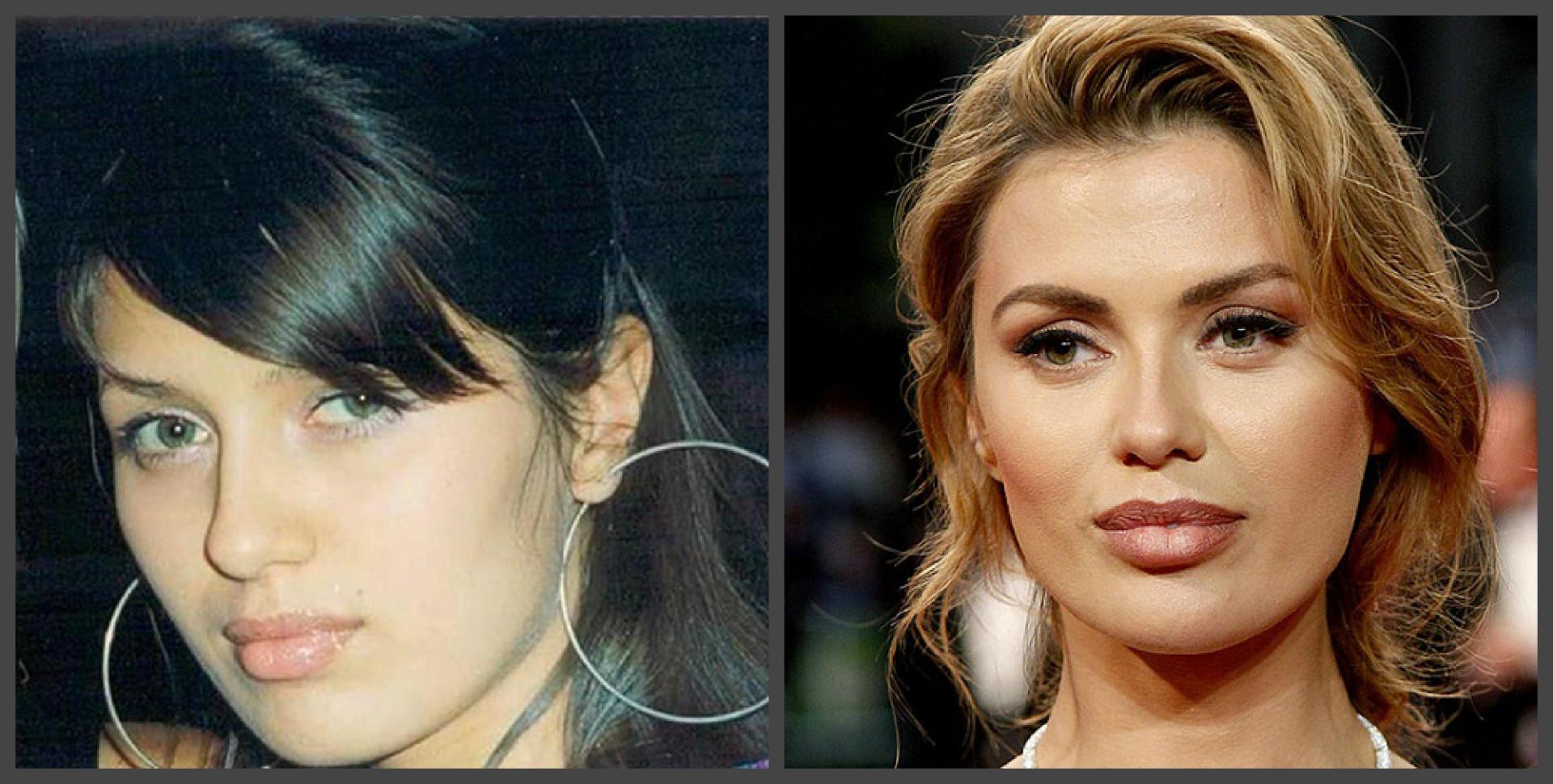 прикладного виктория боня пластика носа фото то, что оба