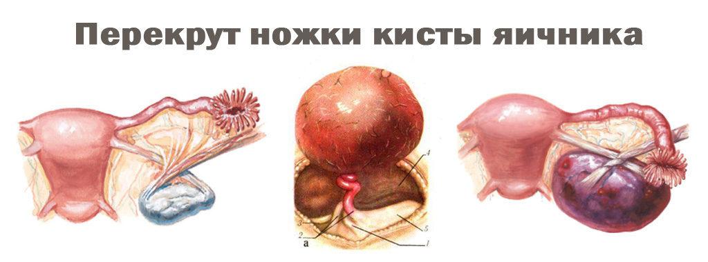 Схема перекрута ножки опухоли