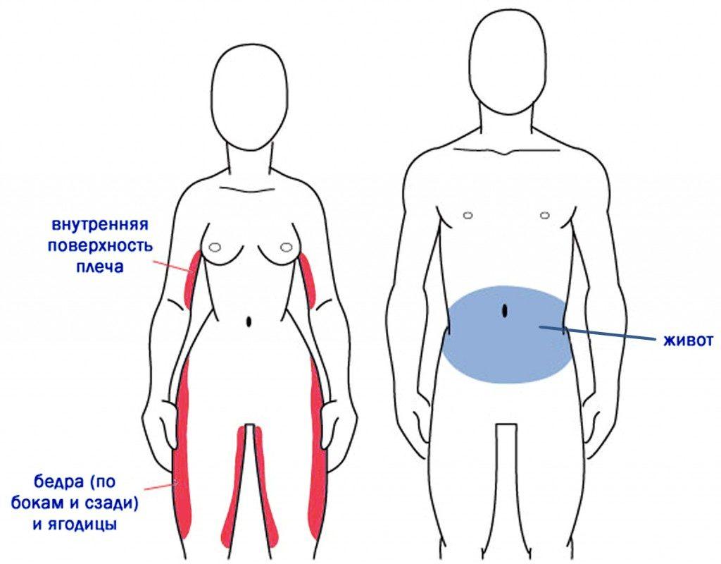 схема расположения жировых отложений у мужчин и женщин