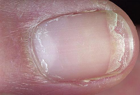 Слоение ногтя