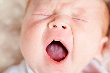 детское заболевание полости рта
