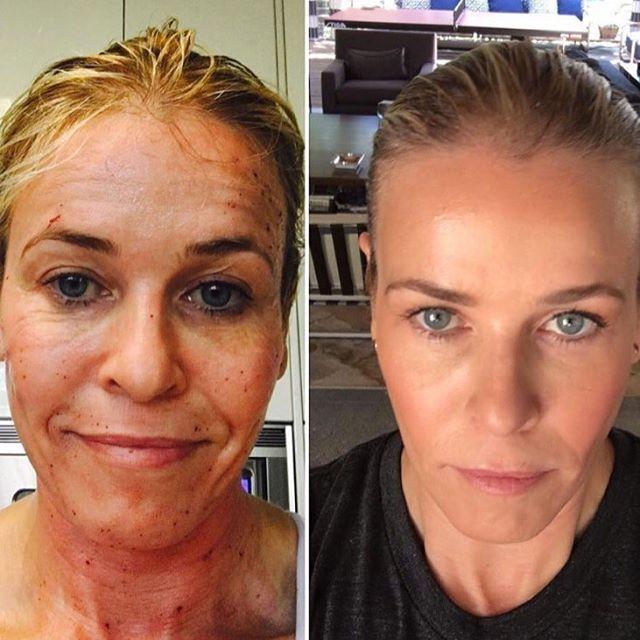 Женщина до и после фракционного лазера