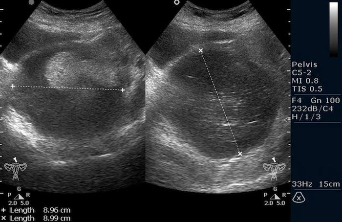 Ультразвуковое изображение тератомы яичника