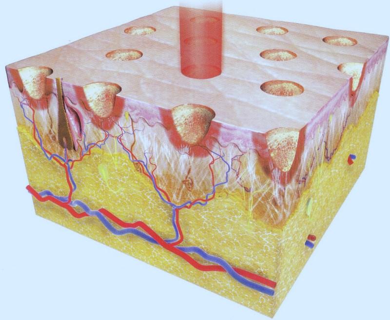 Схема воздействия фракционного лазера
