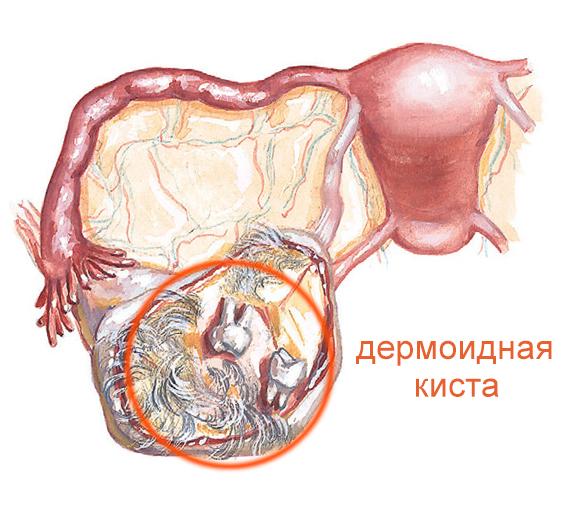 Яичник с тератомой