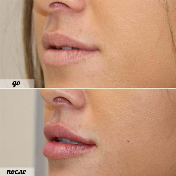 Можно ли колоть гиалуроновую кислоту в губы