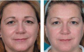 Женщина до и после курса процедур испанского массажа для лица