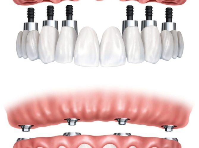 передние зубы имплантанты
