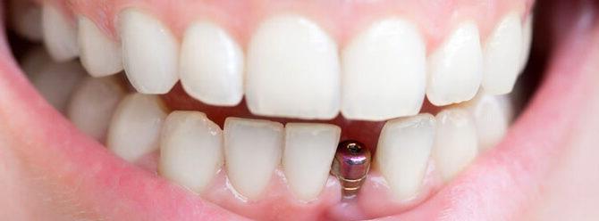вставить зубы имплантанты цена
